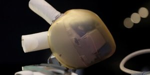 Carmat autorise a implanter son coeur artificiel en rep tcheque