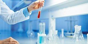 test sérologique labo